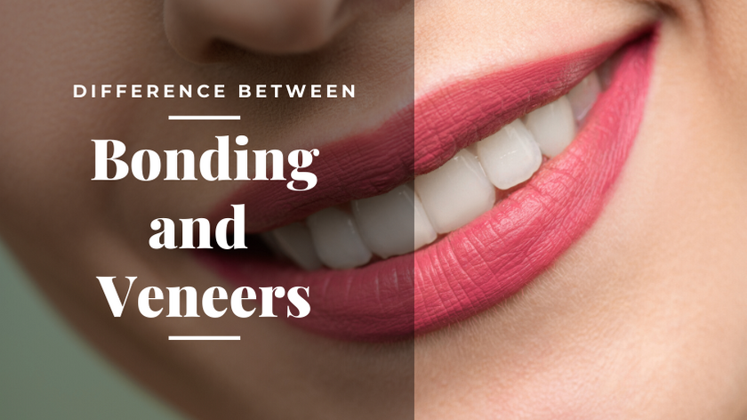What is the Difference Between Bonding and Veneers?